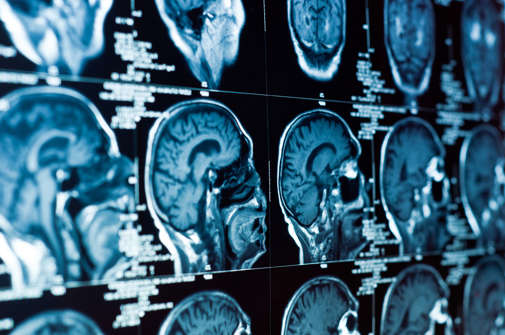 Health Insurance Claims Witness An Increase In Brain Tumours
