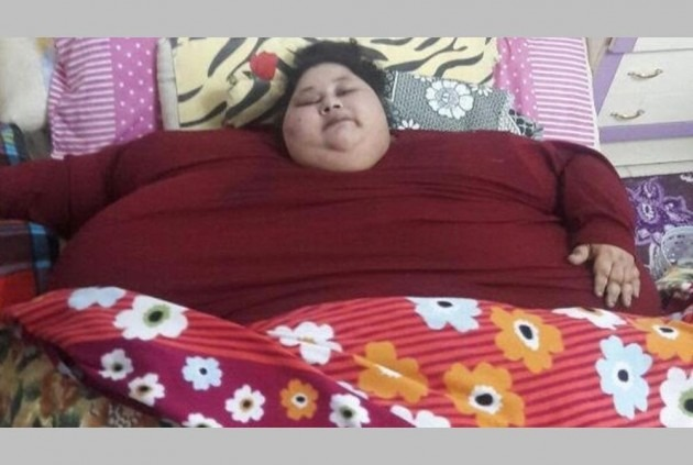 World's ex-heaviest woman Eman dies during stay in Abu Dhabi