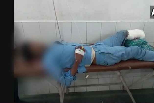 Man's severed leg used as pillow in Jhansi medical college, probe ordered