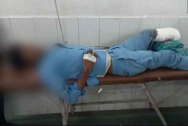 UP shocker: Patient's amputated leg used as pillow in Jhansi hospital