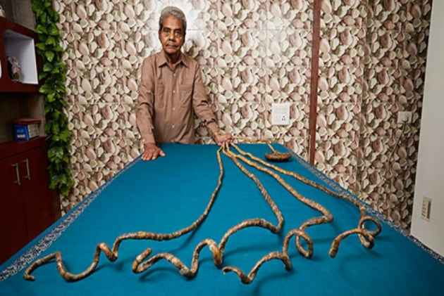 Shridhar Chillal's Hand Permanently Disabled For Not Cutting Nails For 66 Years
