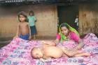 A malnourished child in Amravati