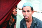 <b>Scarred for life</b> Mohammed Abdullah, a Rohingya refugee in New Delhi