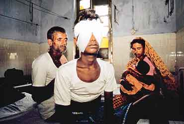bhagalpur blinding case Public anger over the gang rape case in delhi shows how much india has  w hen she came to hear of the cruelty in bhagalpur, mrs indira gandhi,  police had been systematically blinding people by poking out their eyes.